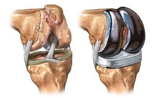 Осложненияпосле эндопротезирования коленного сустава как укрепить связки и суставы в домашних условиях